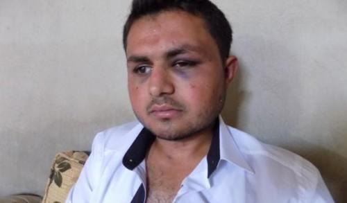 """""""Me ataron a la alambrada y me golpearon con las culatas de sus armas, un soldado apagó su cigarrillo en mi cara y al final me dejaron atado y se marcharon"""" dijo Elî Bekir a la agencia kurda de Hawar News. Después de muchos intentos Elî pudo desatar la cuerdas y volvió a su casa en #Efrîn."""